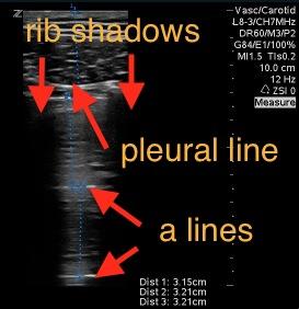 Pneumothorax linearprobe