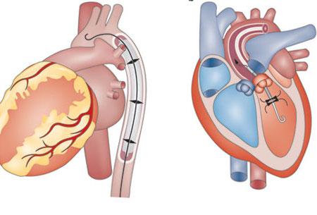 Illustrations of hearts