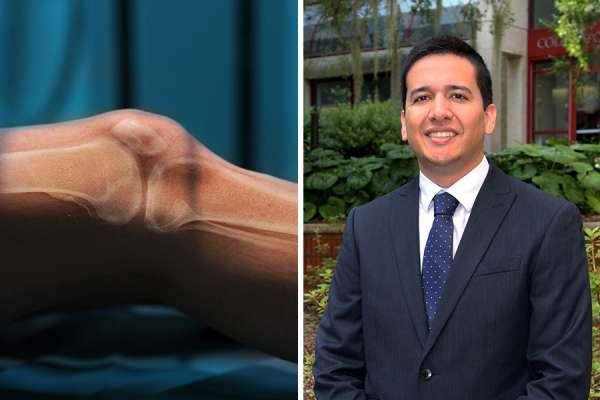 Image of knee side by side with an image of Doctor Mora