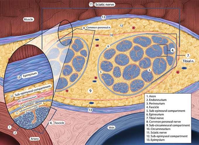 Close-up illustration of a sciatic nerve