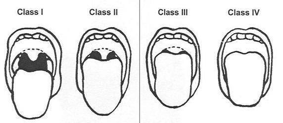 Airway classes
