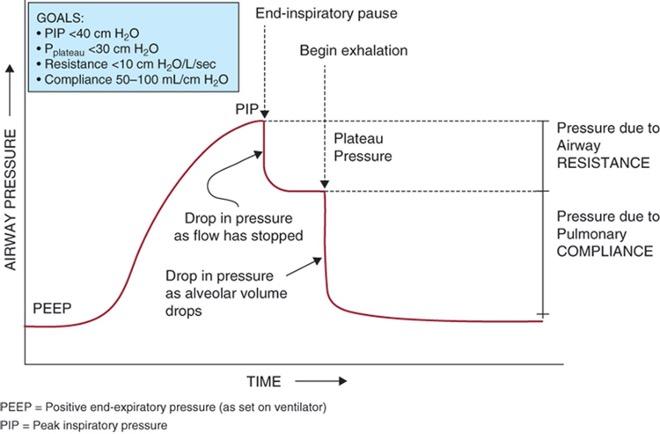 PIP pressure/time graph