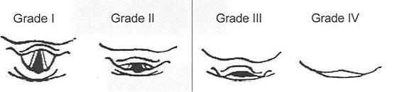 Laryngoscopy grades
