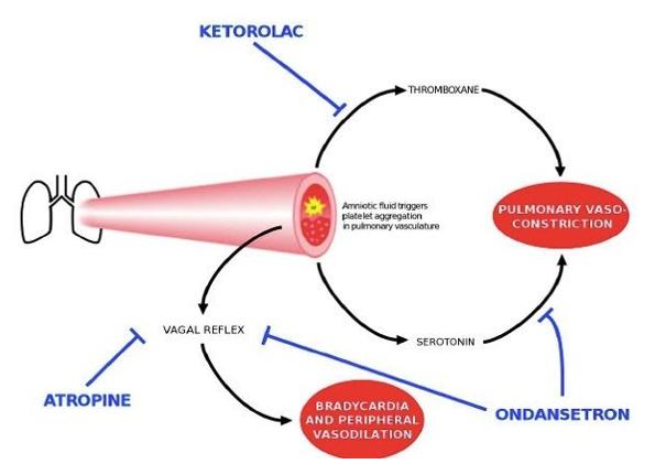 Nonthrombotic embolism